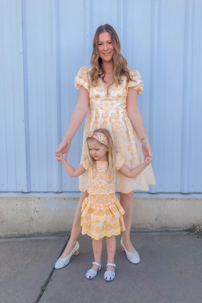 Yellow Broderie Dress 3